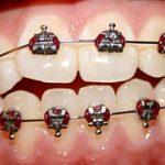 Ortodontska ordinacija je pravo mesto za lep nasmeh