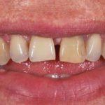 Zobne luske v estetskem zobozdravstvu